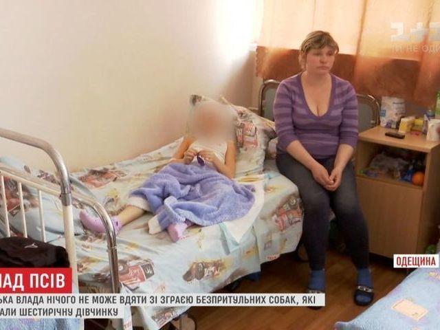 В Одесской области произошло очередное нападение стаи бездомных собак на ребенка