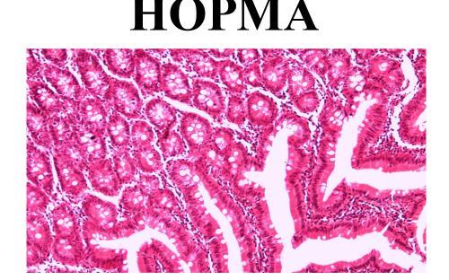 Предотвращение заражения дипилидиозом человека